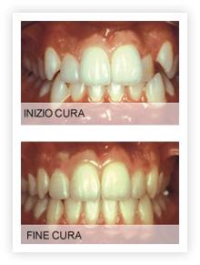 cura_ortodonzia_inizio_fine