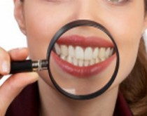 impianti-dentali-1