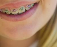 ortodonziamini